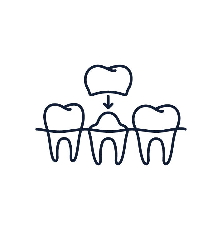 Dentist Troy NY Dental Crowns