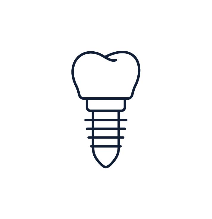 Dentist Troy NY Dental Implants