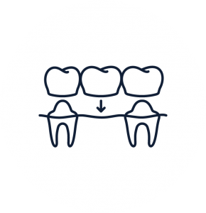 Dentist Troy NY Dental Procedures